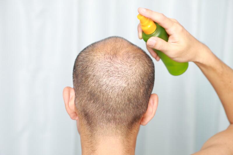 solutions chute de cheveux